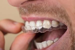 L'ORTHODONTIE INVISIBLE